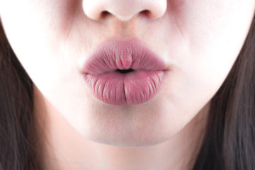 Bulgarian Woman Plumps Her Lips To Triple The Size In The Name Of Fashion & The Photos Are INTENSE