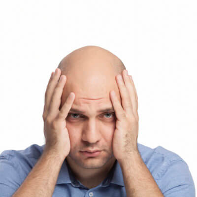 Working Long Hours Will Make You Go Bald, Study Says