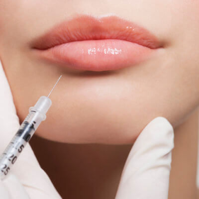 Women Are Using Fillers To Get 'Devil Lips' And It's The Weirdest Thing Ever